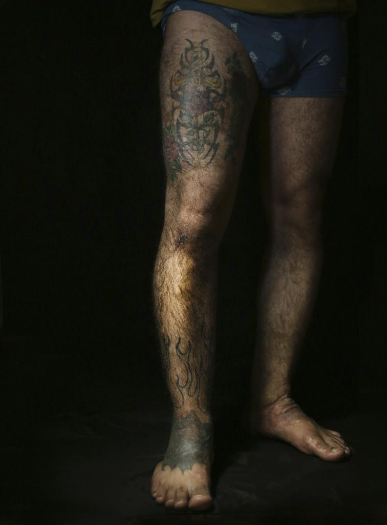 Ap Photos Iraqis Seek Tattoos To Cover Scars Of War Am 1070 The