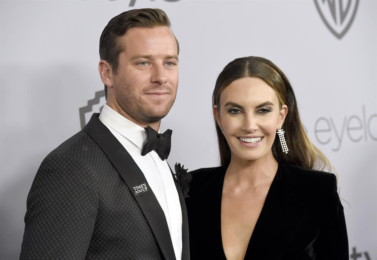 Armie Hammer and Elizabeth Chambers separate after 10 years