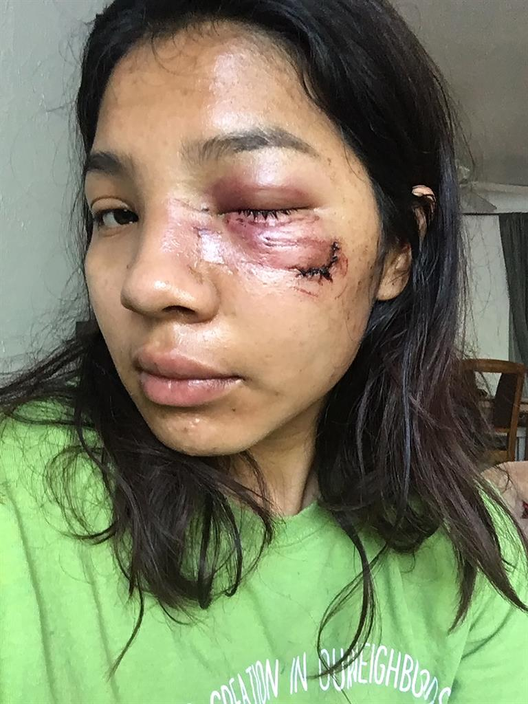 This undated photo provided by Graciela Cisneros shows Cisneros after being injured May, 29, 2020, by a police projectile in violent protests that followed the death of George Floyd in Minneapolis. The city of Minneapolis has settled the first lawsuit by Cisneros, a demonstrator injured in the protests. Cisneros will receive a payment of $57,900 for injuries to her face when a police officer fired a non-lethal round at her as she walked home from a demonstration. Cisneros' cheekbone was broken and her injury required stitches. She was not arrested.  (Graciela Cisneros via AP)